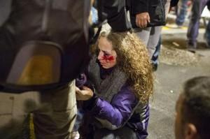 Mujer pierde un ojo